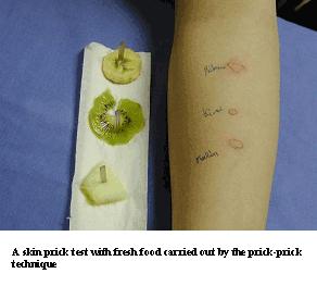 prueba de alergia a los alimentos