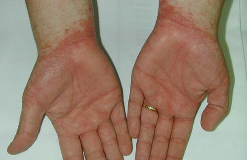 Los medios de atopicheskogo de la dermatitis sobre la cabeza
