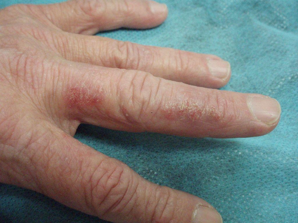 Atopichesky la dermatitis quien curaba y como el foro